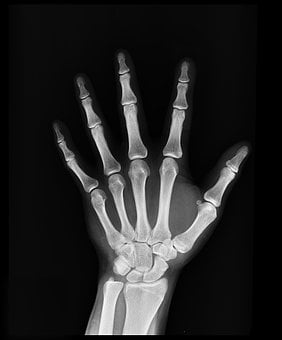 X-Ray, Medical Treatment, Arm, Doctor
